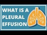 肋膜炎 ('What Does It Really Mean?' Episode 5: Pleural Effusion) Image